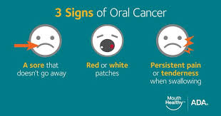 Warning Signs of Oral Cancer | FCT News